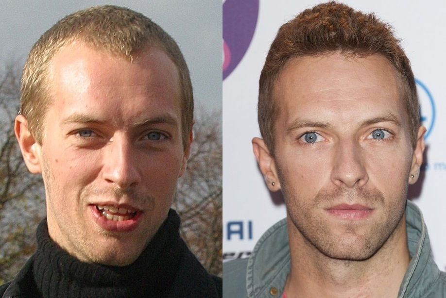 10 Male Celebrities Who Were Losing Hair Concealed Their Baldness